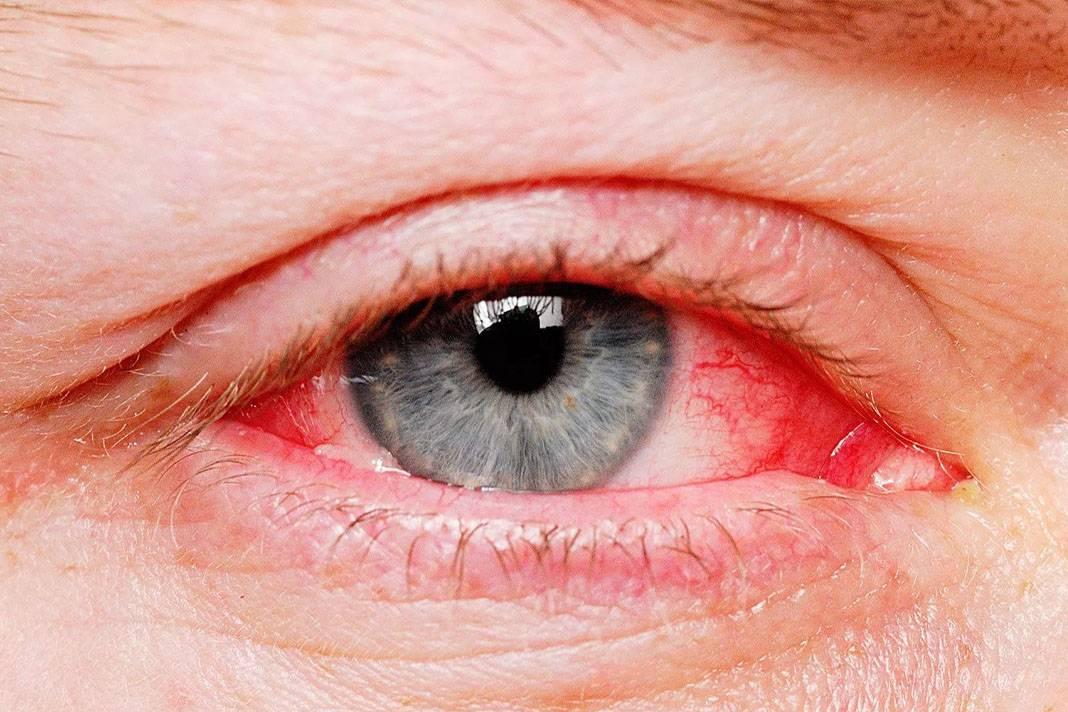 Чем опасен для человека блефарит: симптомы и лечение