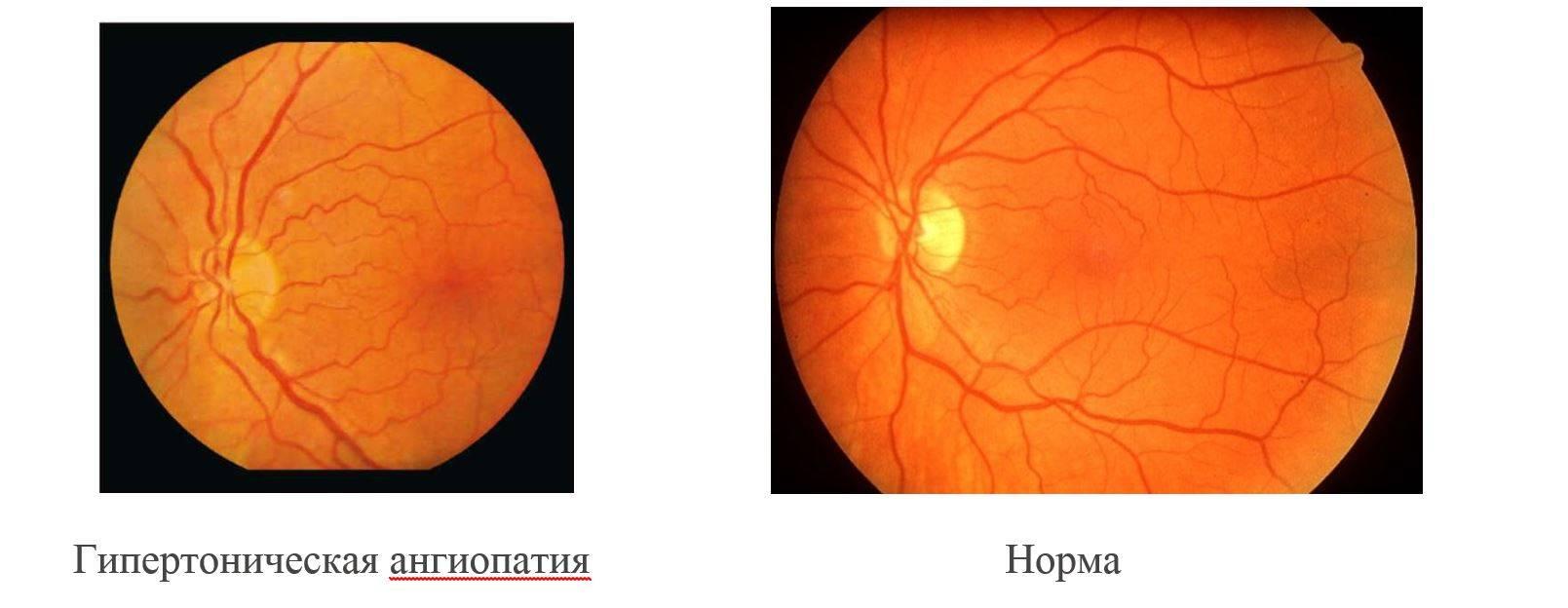 Что такое ангиопатия сетчатки глаза: причины и симптомы, лечение и профилактика патологического состояния