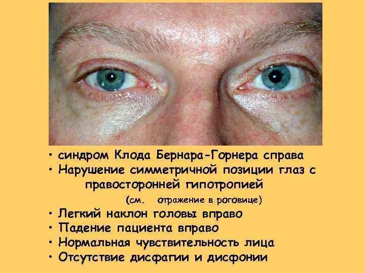 Синдром горнера: симптомы, причины и лечение