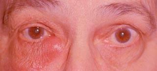 Заболевания слезной железы, мешка и канальцев