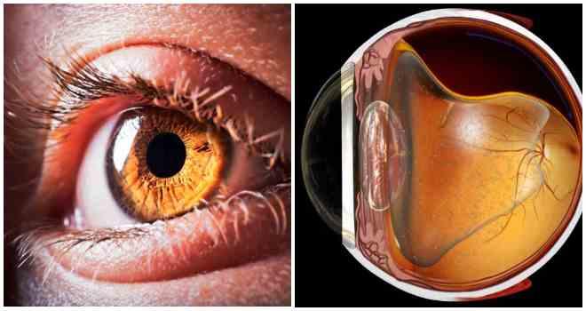 Операция при отслоении сетчатки глаза: виды, цена, последствия