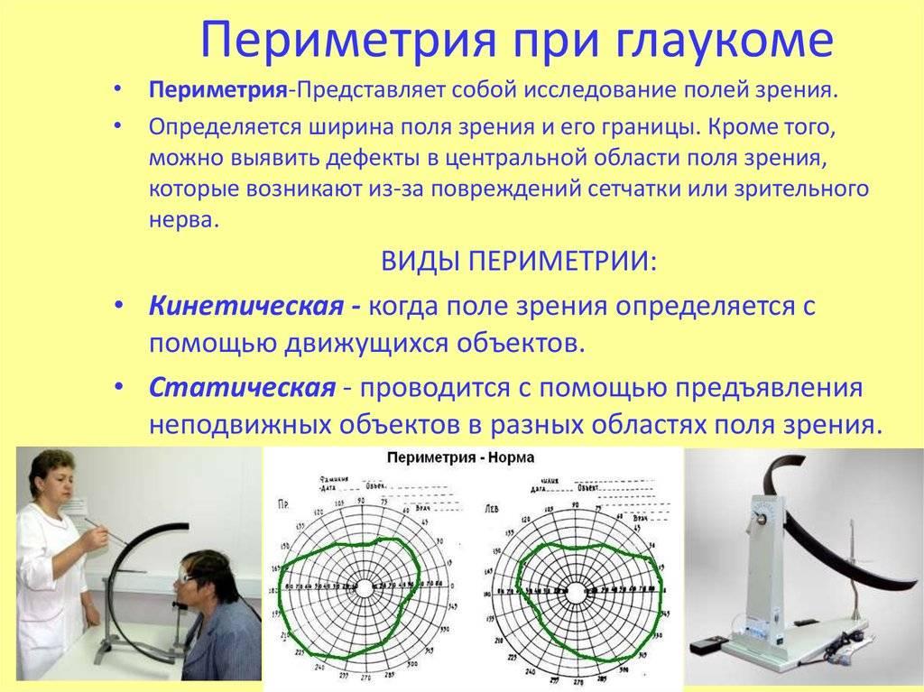Периметрия органов зрения — офтальмология