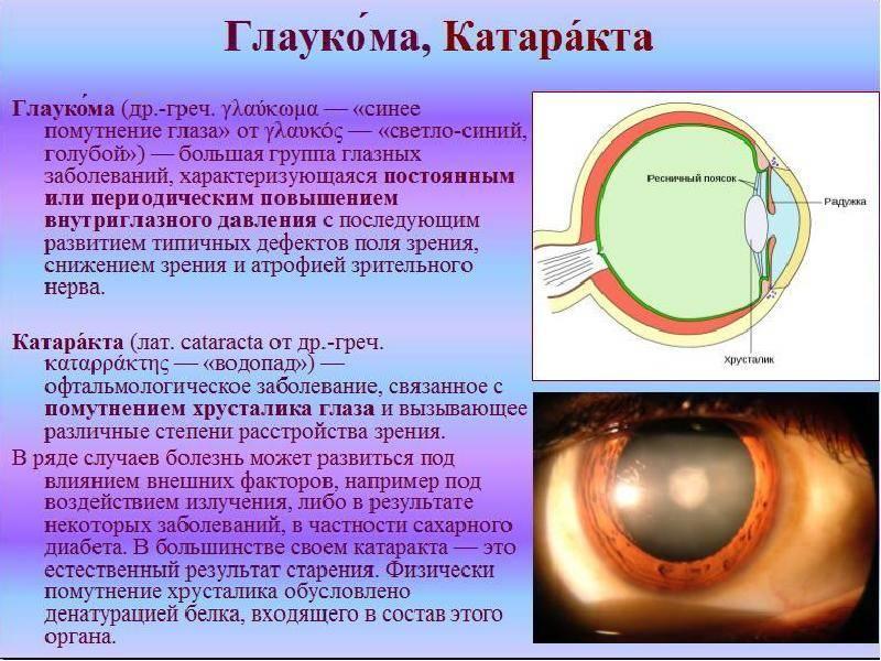 Можно ли работать с компьютером при глаукоме - вылечимглаукому