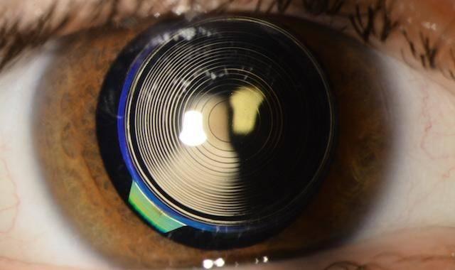 Ухудшение зрения после установки мультифокальной иол - вопрос офтальмологу - 03 онлайн