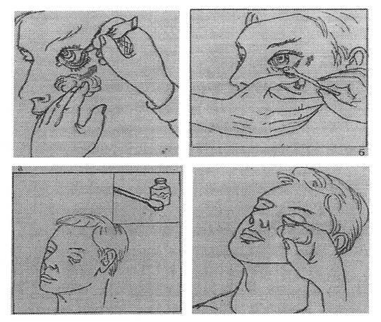 Основные лечебные манипуляции по оказанию неотложной глазной помощи.