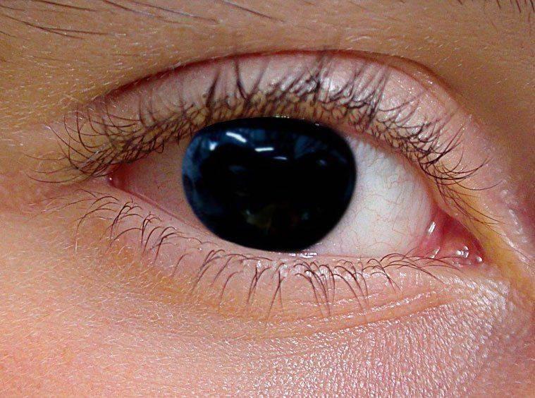 Аниридия - что это такое, отсутствие радужной оболочки глаза