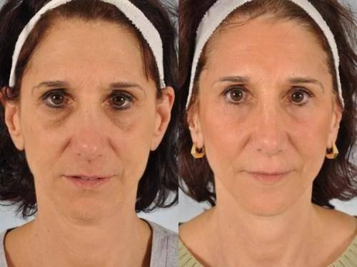 Отзывы мезотерапия под глаза caregen со, ltd dermaheal eyebag solution » нашемнение - сайт отзывов обо всем