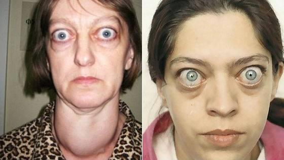 Выпученные глаза у человека: причины болезни и лечение oculistic.ru выпученные глаза у человека: причины болезни и лечение