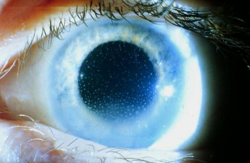 Заболевание глаз — ирит