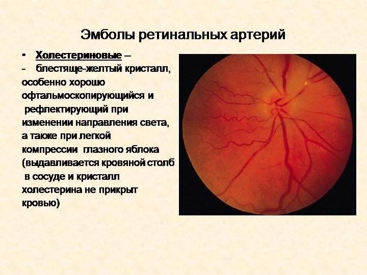 Болезнь, приводящая к слепоте — фоновая ретинопатия
