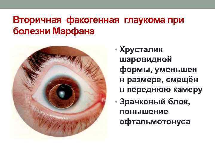 Вторичная глаукома: причины, виды, стимптомы и методы лечения