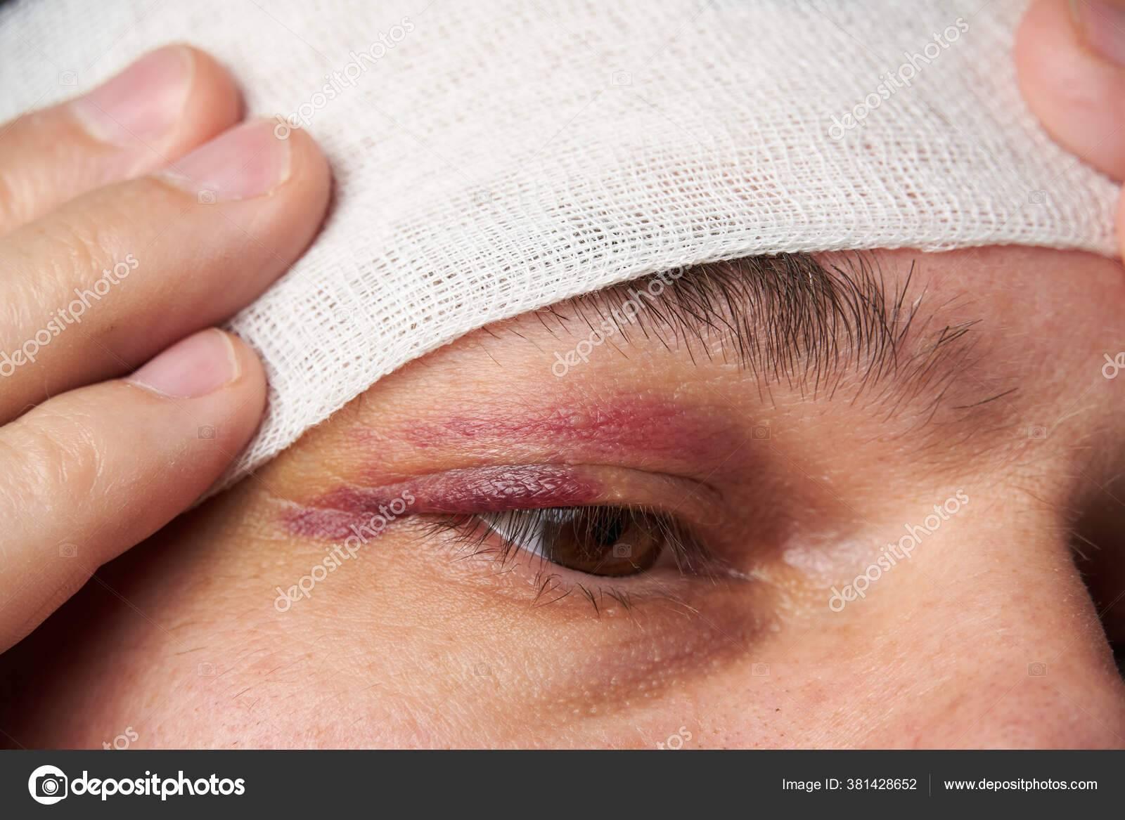Как лечить синяк под глазом. синяк на веке и под глазом без причины - лечение