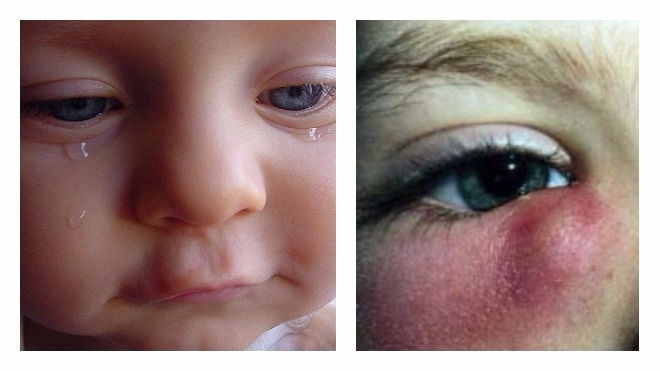 Слезятся глаза у новорождённых и грудничков: как найти причину и устранить её