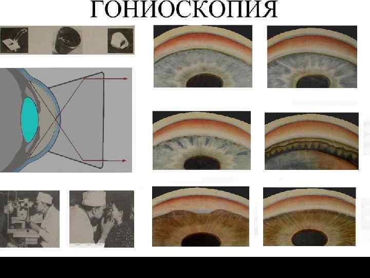 Гониоскопия органов зрения — офтальмология