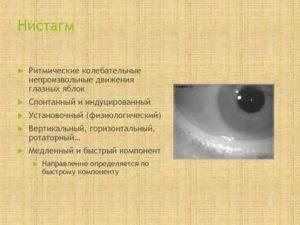 Нистагм: причины возникновения вертикального и мелкоразмашистого горизонтального