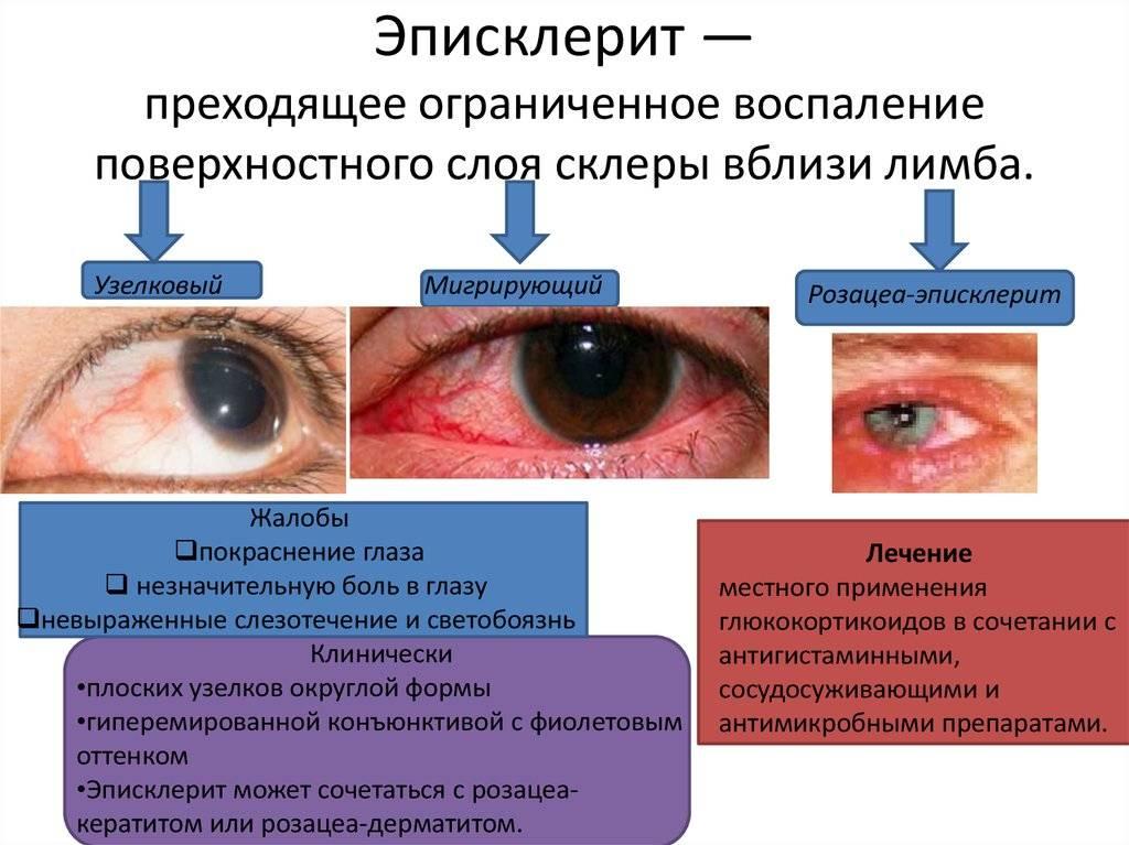 Эписклерит глаза: фото, причины заболевания, симптомы болезни, лечение острого и узелкового эписклерита