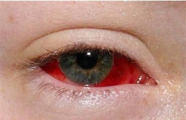 Кровоизлияние в глазу: причины и виды, методы лечения и прогноз сохранения зрения