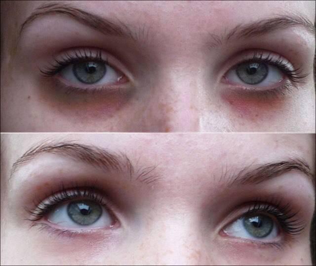 """Синяки под глазами: причины, диагностика, лечение - """"здоровое око"""""""