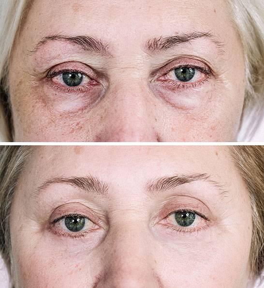 Лазерная блефаропластика (co2) – бережная коррекция области глаз