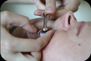 Измерение внутриглазного давления по маклакову