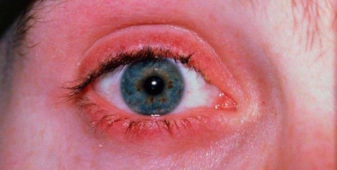 Клещевой блефарит: симптомы, лечение народными и медицинскими средствами — глаза эксперт