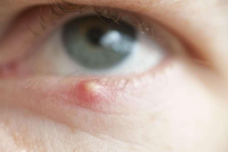 Простуда на глазу и веке – как лечить