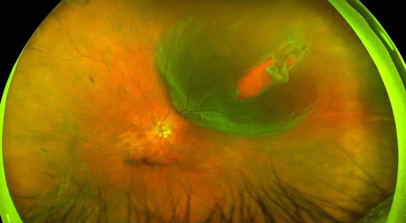 Макулярный разрыв сетчатки - лечение, причины и симптомы
