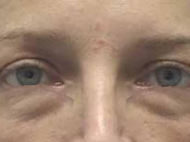 Мешки под глазами. причины появления мешков под глазами. как избавиться от мешков под глазами?