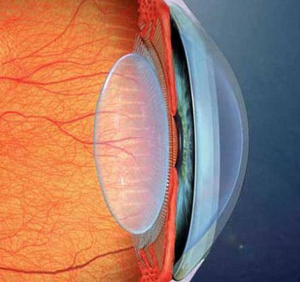 Артифакия глаза: преимущества, риск осложнений