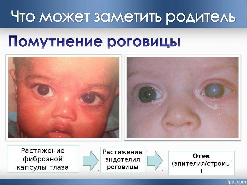Врожденная глаукома детей