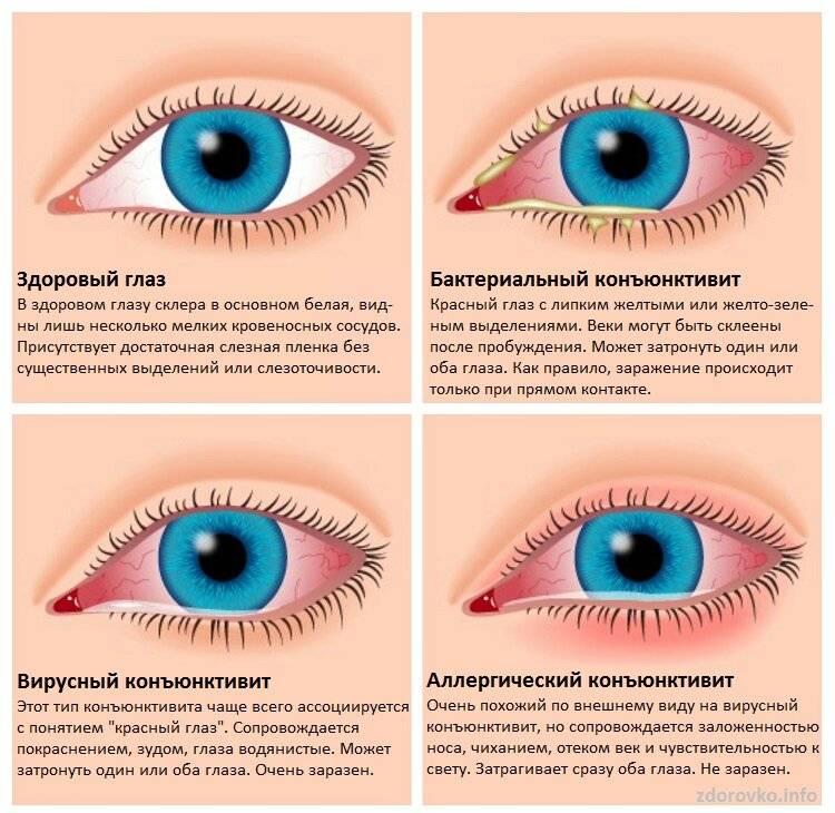 Лечение и профилактика конъюнктивита. детские глазные капли