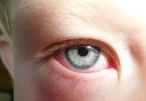 Покраснение и отечность вокруг глаз у детей и взрослых