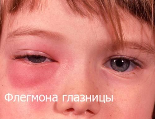 Опух глаз у ребенка: причины отека, что делать