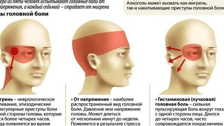 Боль в глазах и головная боль, причины того, почему болит одна сторона головы