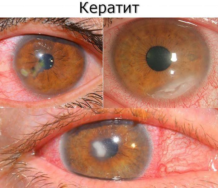 Кератит - симптомы, лечение, причины болезни, первые признаки
