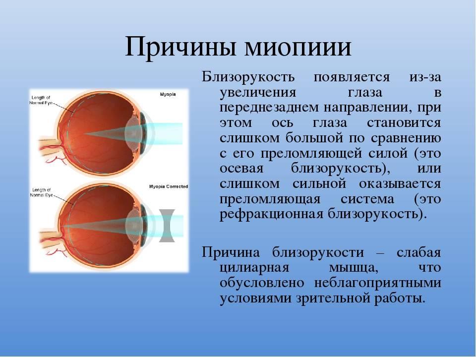 Миопия слабой степени: что это такое, причины, симптомы, эффективные способы лечения, профилактика