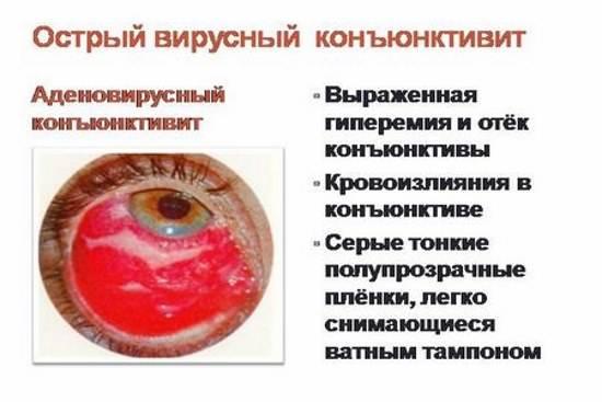 Бактериальный конъюнктивит: лечение у взрослых, симптомы, причины (заразен ли), острая, хроническая формы