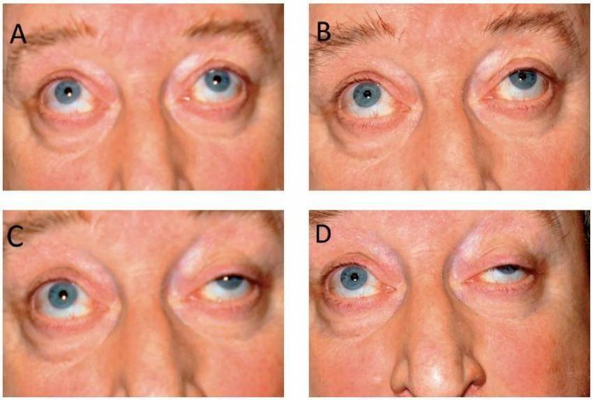 Гипертензия глаза — офтальмогипертензия | справочник врача