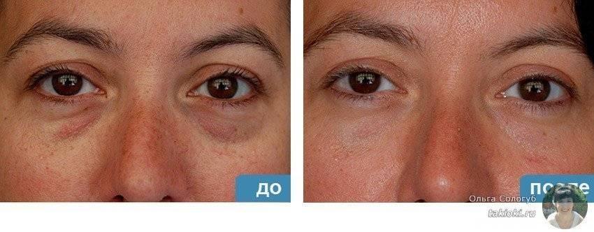 Мезотерапия под глазами: сотрите 10 лет с лица!