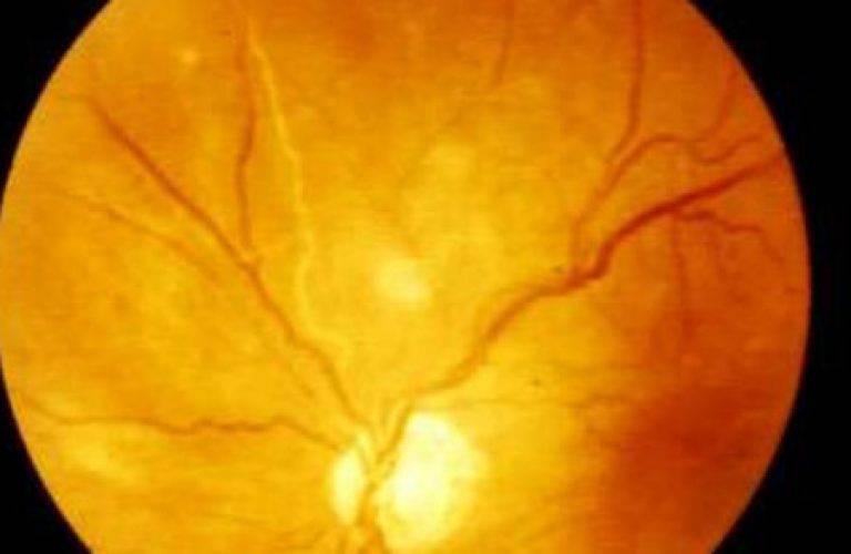 Ангиопатия сосудов сетчатки глаз: причины и симптомы патологии, как лечить такое заболевание