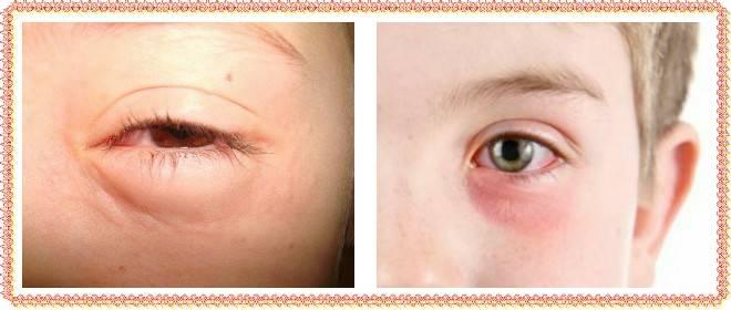в помощь маме: у ребенка опух глаз, как помочь малышу?