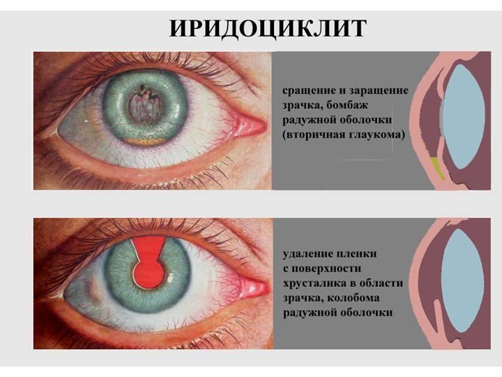 Иридоциклит (острый, хронический) – лечение (препараты), причины возникновения