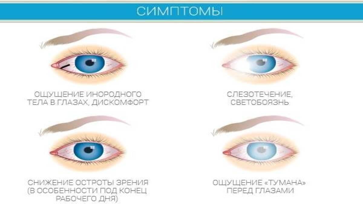 Почему возникает ощущение инородного тела в глазах и как избавиться от навязчивого симптома