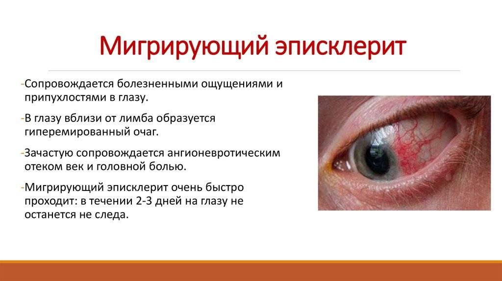 Эписклерит глаза: причины и методы лечения