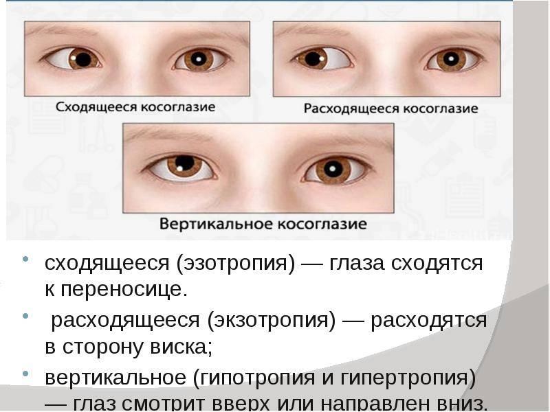 Расходящееся косоглазие: причины и способы лечения — глаза эксперт
