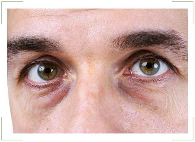 """Желтые круги вокруг глаз: при каких болезнях, способы избавления и профилактика - """"здоровое око"""""""