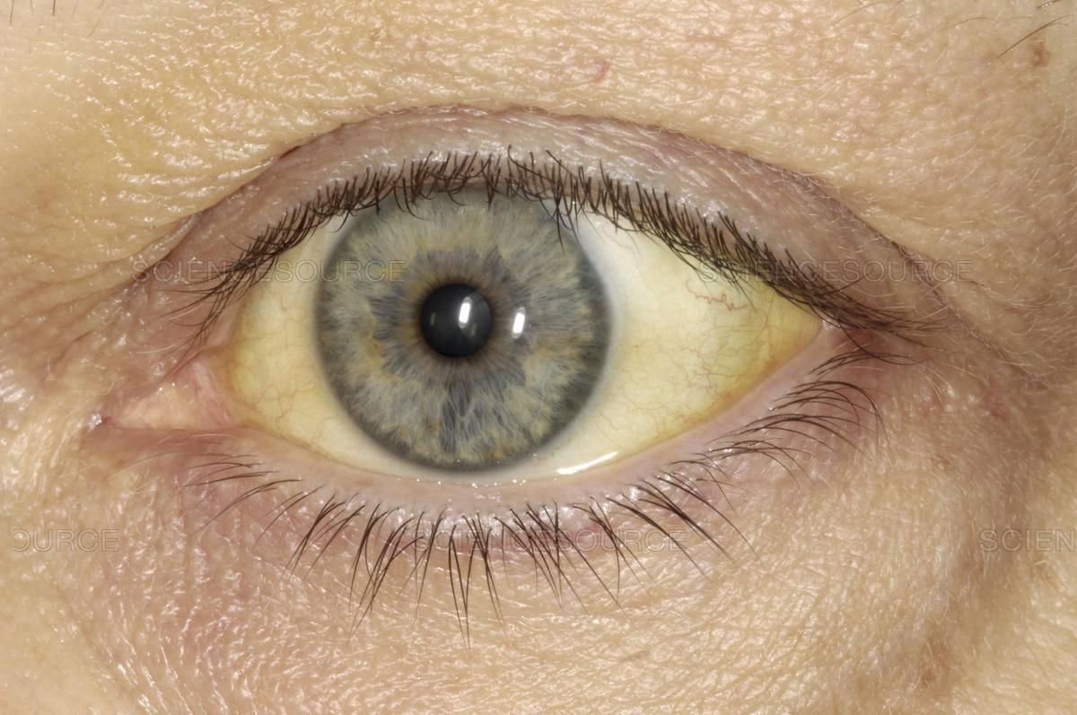 Что означают голубые глаза у мужчин и женщин
