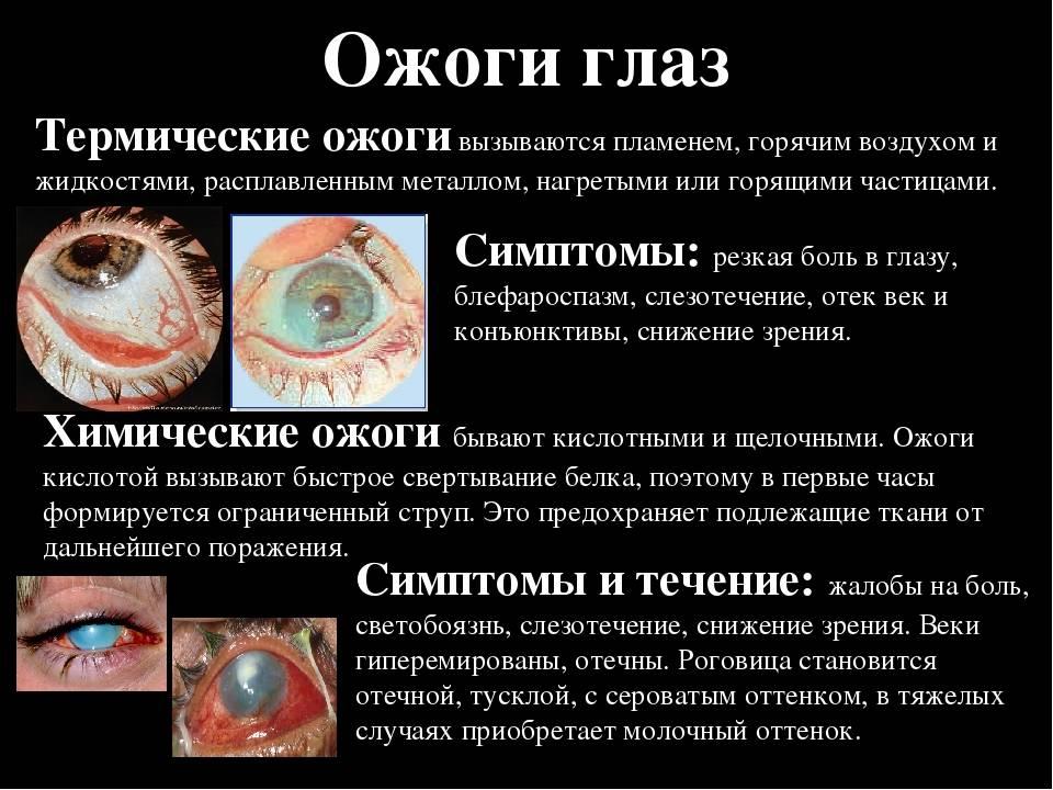 Ожог роговицы глаза – симптомы и лечение (фото). химический ожог.
