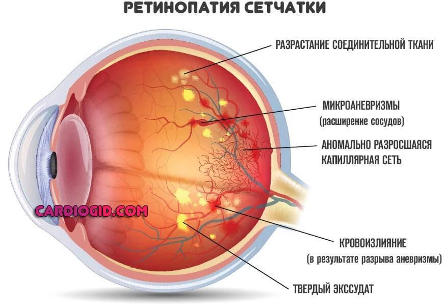 Признаки отслоения сетчатки глаза: симптомы, лечение хирургическим методом