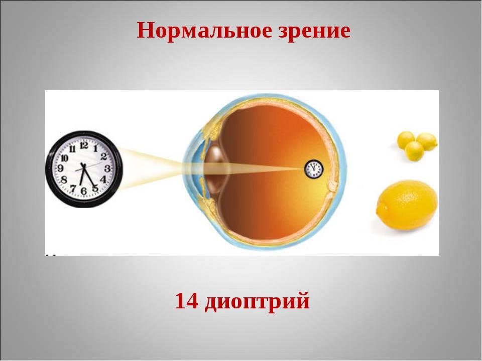 Разное зрение на глазах - как называется, причины